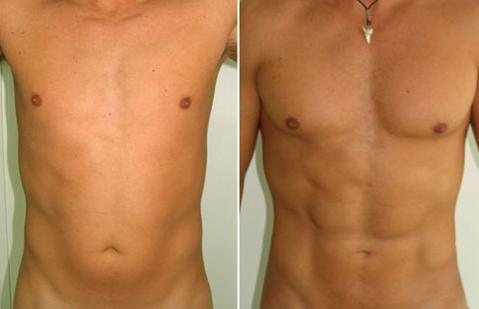 ABDOMINAL LIPOSUCTION IN  MALE BEFORE & AFTER