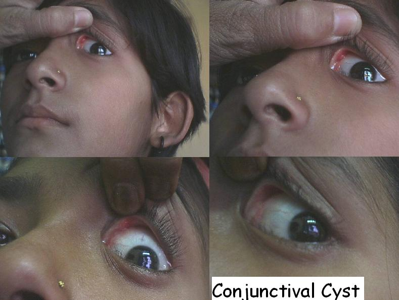 Conjunctival Cyst cured By Homeopathic Medicine