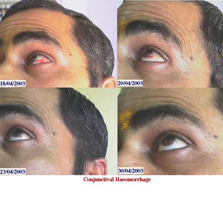 Conjunctival Haemorrage Cured by Homeopathy