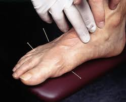 FOOT ACUPUNCTURE